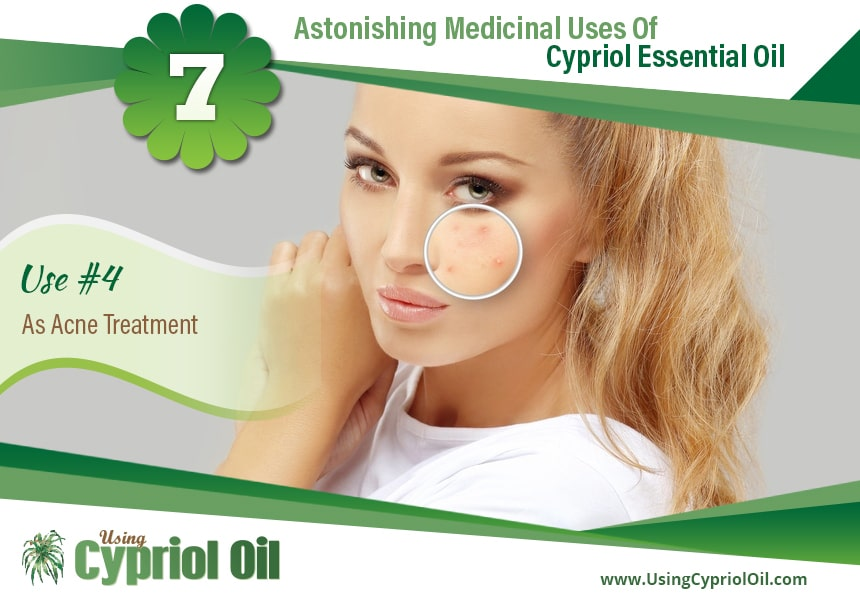 Cypriol oil for acne